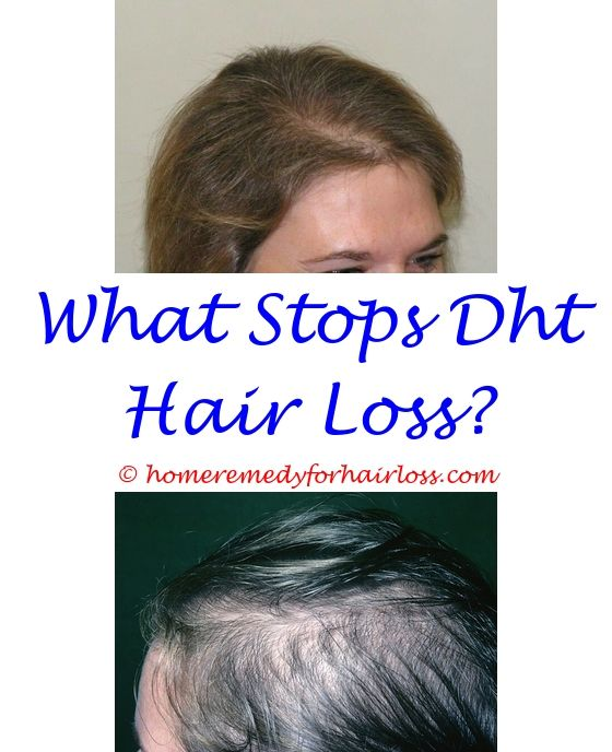 hair loss from thyroid reversible - hair loss testosterone booster.hair loss depo provera aplastic anemia and hair loss red wine reverse hair loss 2592465776