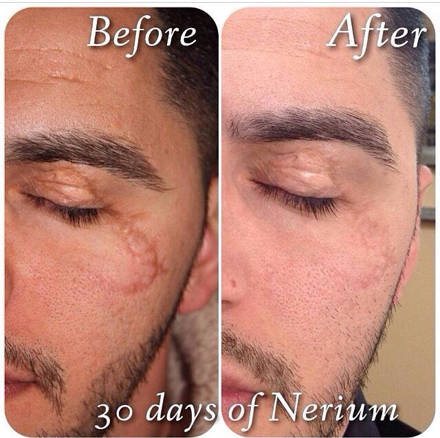 Nerium AD helps with all sorts of skin issues. What do you have to lose besides skin imperfections??? I personally have a scar that I've had on my cheek since I was 11 months old (now I'm 33) and after using Nerium AD it is almost completely gone. We offer a 30 day money back guarantee!!! Check out my website www.refreshedu.nerium.com