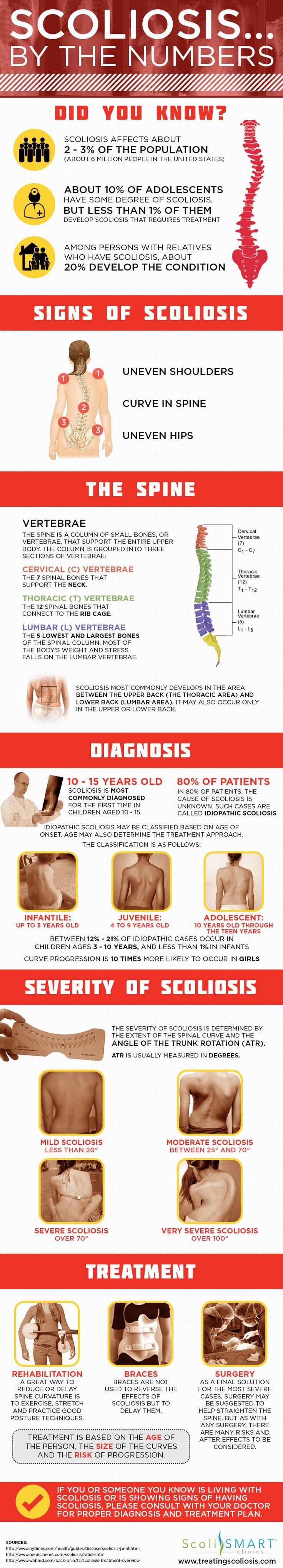 scoliosis-numbers