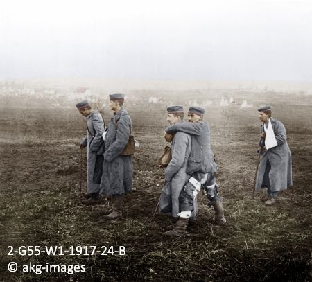 2-G55-W1-1917-24-B Wounded German soldiers at the Battle of the Aisne, 1917 akg-images