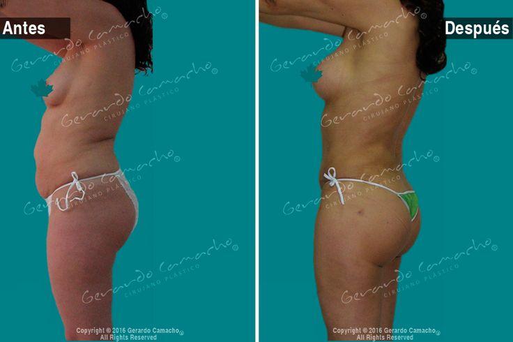 Mommy Makeover  son los procedimientos: Lipolisis  Ultrasónica  VASER-Abdominoplastía con elevación de senos  con Prótesis  Dr. Gerardo Camacho Cirujano Plástico Bogotá Colombia.