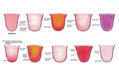 Was die Zunge über deine Seele und Gesundheit verraten kann - Besser Gesund Leben