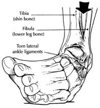 sprained ankle treatment, rehab, recovery time - ankle sprains, ligaments - plantar flexion and inversion sprain