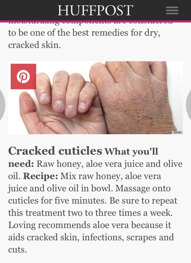 Dry cuticles dry cuticles cracked skin skin care