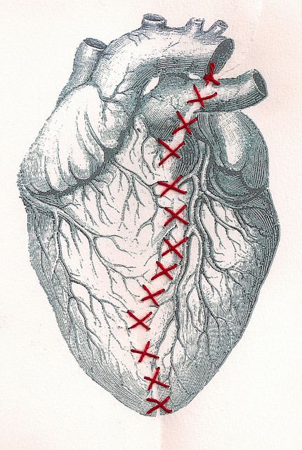 Broken Heart with Repair Work, art illustration, stitched art.