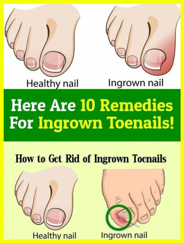 3eb593c2e67eff6266d6e0c5de4f6959 - How To Get An Ingrown Toenail Out Without It Hurting