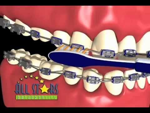 Đánh răng khi niềng răng