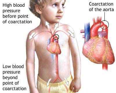 A Coarctation of the Aorta with a Side of Ventricular Septal Defect | The Mommy Dialogues