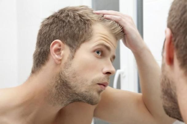 What is DHT Hair Loss and How To Treat It? This article is aboutDHT hair loss and ways to treat it. Dihydrotestosterone or DHT hair loss is an androgen, a male sex hormone, which is produced in the body by an enzyme called 5 alpha-reductase. This is highly vigorous form of testosterone, which is primarily formed in the adrenal glands, ... #AvoidDHTHairLoss, #BestWaysToReduceDHTHairLoss, #CureDHTHairLoss, #DHT, #DHTHairLoss, #GetRidOfHairLossProblem, #GrowHair, #HairFall,