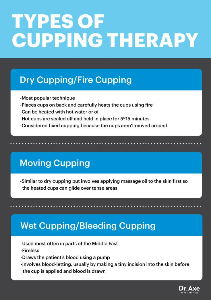 Types of cupping - Dr. Axe http://www.draxe.com #health #holistic #natural