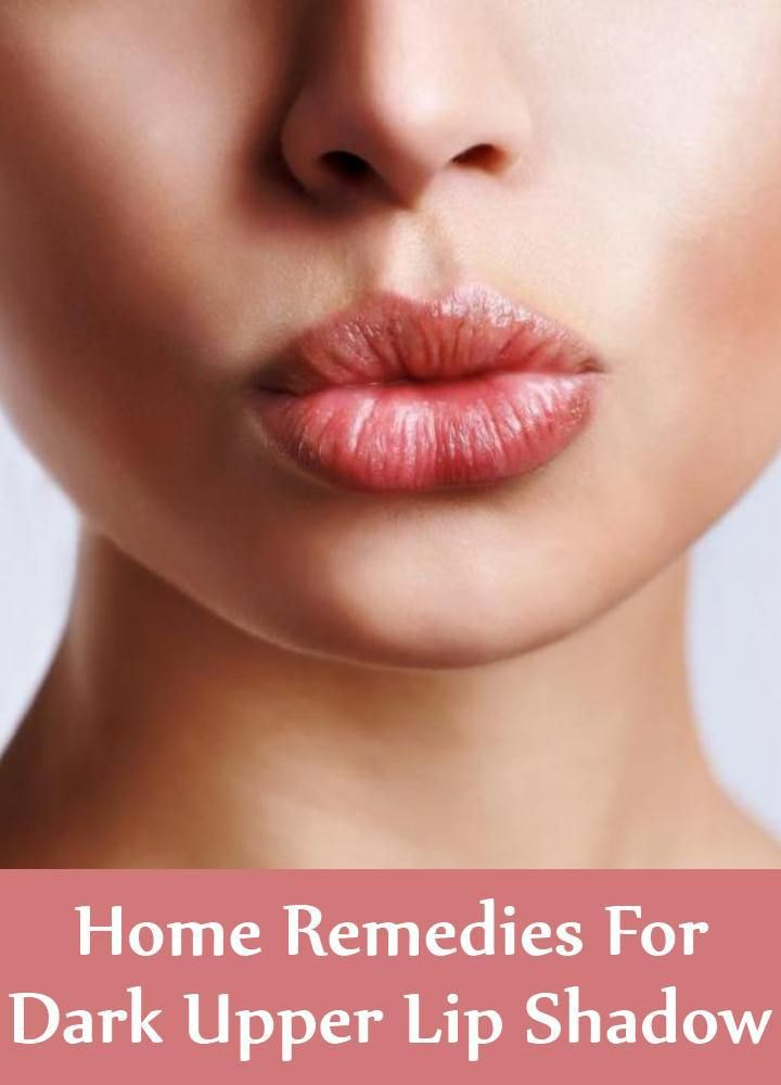 5 Top Home Remedies For Dark Upper Lip Shadow | Chapped ...