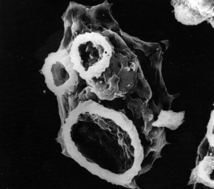 17 Best Images About Endoparasitology On Pinterest Red Blood Cells Note And Hiv Causes