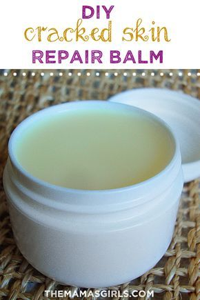 When the weather gets cold and dry, my hands get so chapped that they crack! Though I try to wear gloves when possible, there are just some things you cannot do while wearing gloves! I have been using this Skin Repair Balm and it has protected my hands from the cold and softened them...Read More »