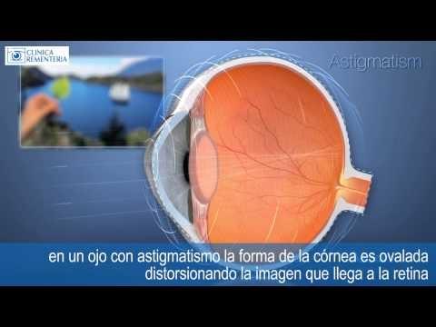 http://www.cirugiaocular.com    Astigmatismo o mala visión a todas las distancias    En un ojo sano normal la forma de la córnea es esferica como una pelota; esto permite al cristalino dajar pasar la luz sin distorsión y enfocar la imagen en un solo punto de la retina, proporcionando una visión clara.