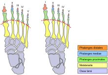 "Morton's toe (also called Morton's Foot, Greek foot, ""Royal Toe""), at left, comparison with ""normal"" foot, right. Image:  By V4711 