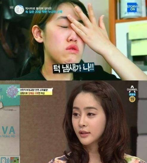 19 best korea plastic surgery images on Pinterest Korean plastic - plastic surgery consultant sample resume