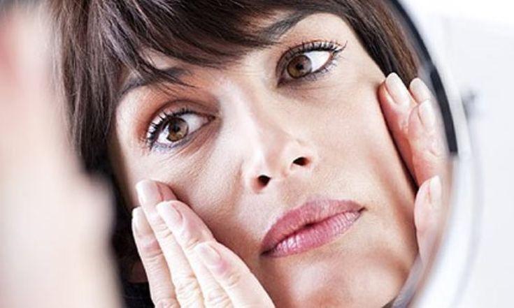 A pele flácida pode apresentar rugas e marcas de expressão. (Foto: Divulgação)