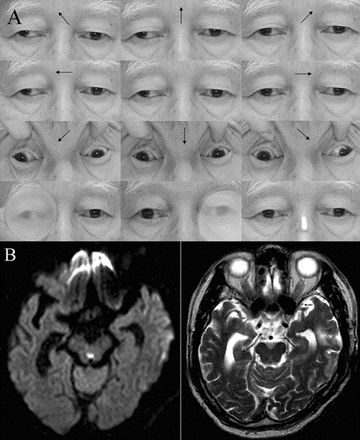 WEBINO should be differentiated from the exotropia (paralytic pontine exotropia) of one-and-a-half syndrome which denotes unilateral horizontal gaze palsy and internuclear ophthalmoplegia and occurs in the pontine lesion involving the paramedian pontine reticular formation and MLF.3 The dissociated abducting nystagmus, impaired convergence, and supranuclear vertical gaze palsy (video) in our patient support a midbrain lesion damaging the bilateral medial longitudinal fasciculus and…