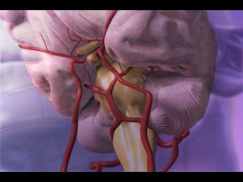This Subarachnoid Hemorrhage video is created by Argosy Medical for Visible Body. http://www.visiblebody.com