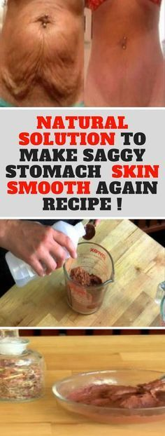 How To Make Your Saggy Stomach Skin Smooth Naturally