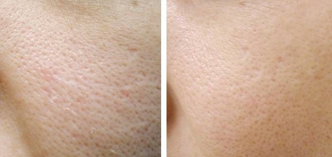 enlarged-pores