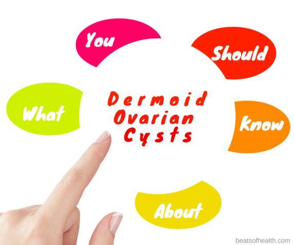 dermoid ovarian cysts symptoms surgery treatment and statistics