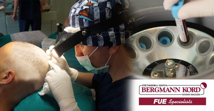 Πρωτόκολλο Μεταμόσχευσης Μαλλιών FUE+ (G.A.T.) | Ενισχυτικές Θεραπείες για ακόμη πιο θεαματικά αποτελέσματα ! Στις Κλινικές Μαλλιών Βergmann Κord, εφαρμόζεται, συνδυαστικά της Μεταμόσχευσης Μαλλιών, η θεραπεία PRP (Platelet Rich Plasma). Η αξιοποίηση των Αυξητικών Παραγόντων, συμβάλλει ποικιλοτρόπως σε όλη τη διαδικασία, ενισχύοντας σημαντικά και το τελικό αποτέλεσμα. Διαβάστε περισσότερα εδώ : goo.gl/MDhkxn