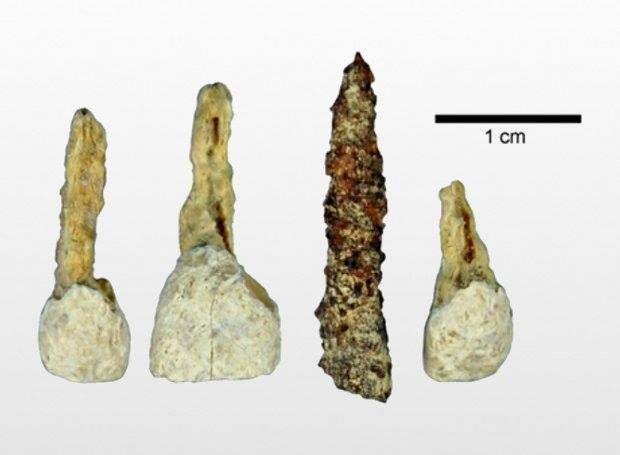 Μήπως στο χωριό του Αστερίξ και του Οβελίξ, εκτός από μαγικά φίλτρα για τους Ρωμαίους, έφτιαχναν και τεχνητά δόντια; Ερευνητές ανακάλυψαν σε ένα σπήλαιο της Γαλλίας (τότε Γαλατίας) ένα ψεύτικο δόντι, που είχε τοποθετηθεί σε μια γυναίκα ηλικίας 20 έως 30 ετών, η οποία ζούσε πριν από περίπου 2.300 χρόνια.