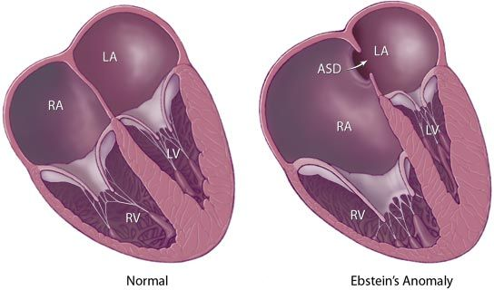 Ebstein's Anomaly atrial septal defect, atrialized right ventricle, malformed tricuspid valve Associated with lithium exposure in 1st trimester