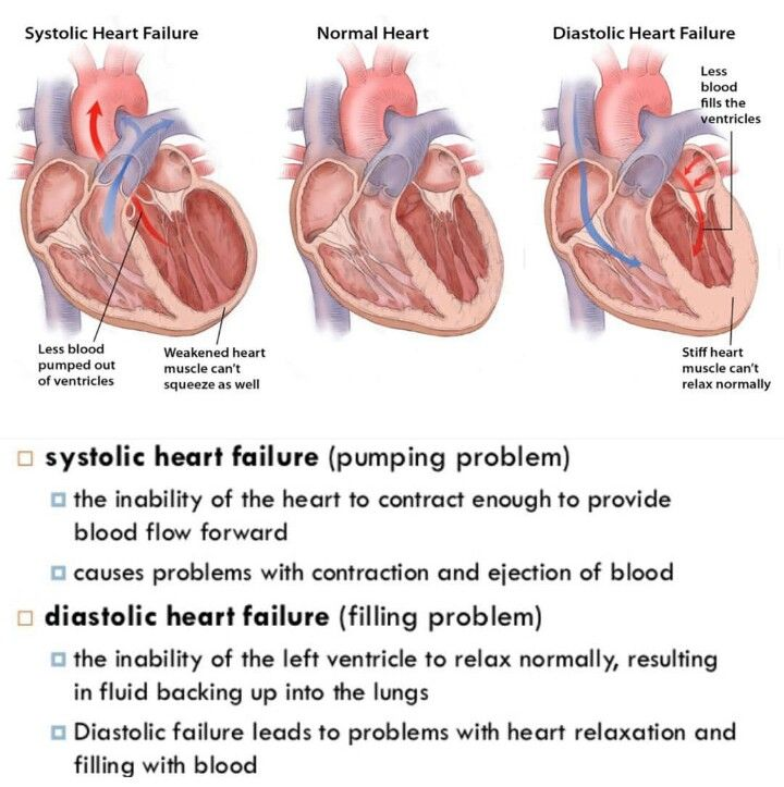 Systolic VS Diastolic Heart Failure