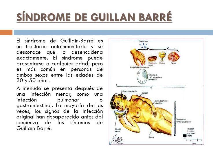 síndrome de guillain-barré sintomas