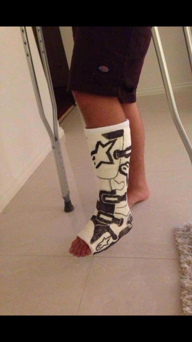 Sad that he needed a cast, but if we were to get one, we'd definitely do this! #Alpinestars #motorcycle #humor                                                                                                                                                      More