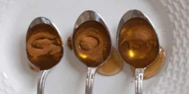 De combinatie van honing en kaneel is een van de meest krachtigste natuurlijke remedies, die een breed scala van toepassingen heeft. Het is voor eeuwen gebruikt in de Yunani en Ayurvedische geneesk…