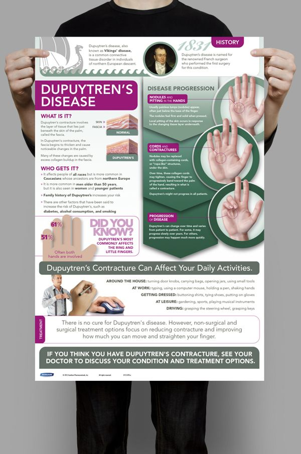 149 best Dupuytren Contracture images on Pinterest ...