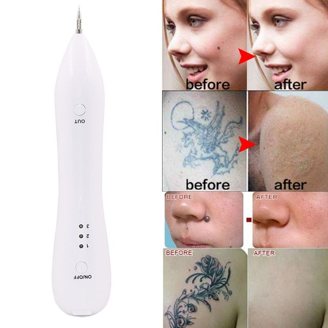 Laser Freckle Removal Machine Spot Tattoo Remover Laser Machine Dark Spot Remover Face Wart Tag Remaval Pe Laser Freckle Removal Face Warts Tattoo Removal Cost
