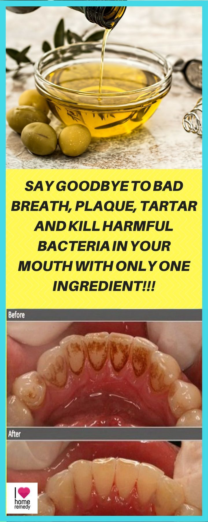 The extraction of oil is mainly used to improve oral health. Keep reading to learn how to perform this technique in order to eliminate plaque, dental tartar and bad breath once and for all.- Say goodbye to bad breath, plaque, tartar and kill harmful bacteria in your mouth with only one ingredient