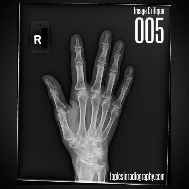 155 Best Radiographic Anatomy Images On Pinterest Anatomy Anatomy
