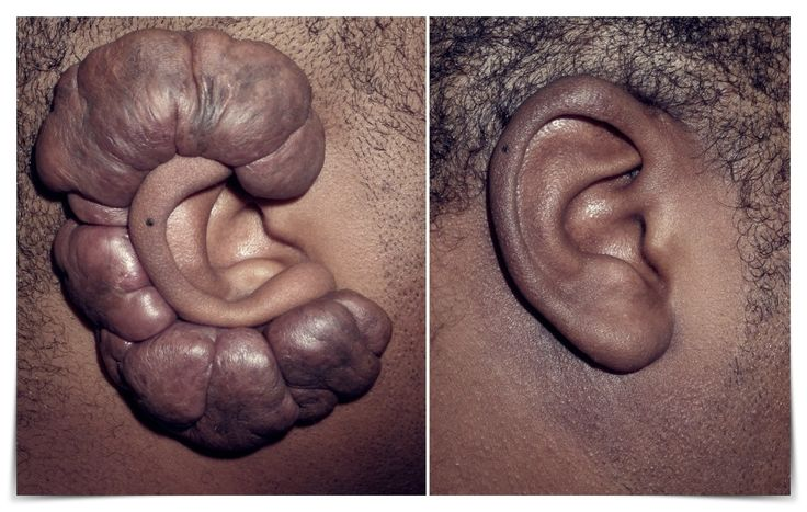 Easy Ways to Remove the keloid