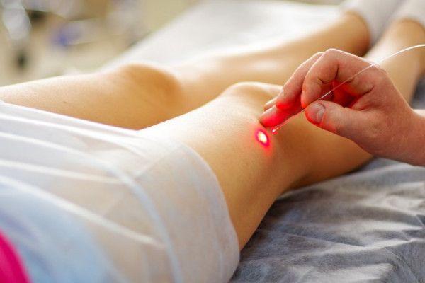 varicoză tratament tirgery