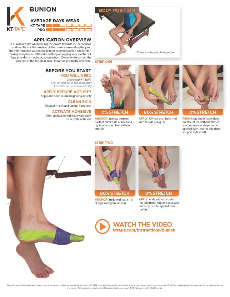KT Bunion Taping: Tape provides a mechanical correction. Do not try to correct the position of the toe all at once. Move toe gradually over time