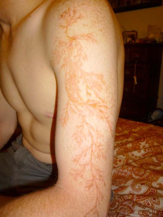 The amazing mark left behind on a lightning strike survivor #lightning #scar #science