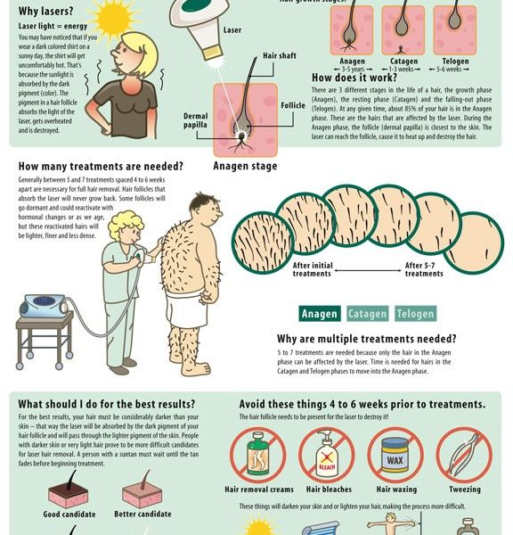 how-laser-hair-removal-works-infographic-infographic