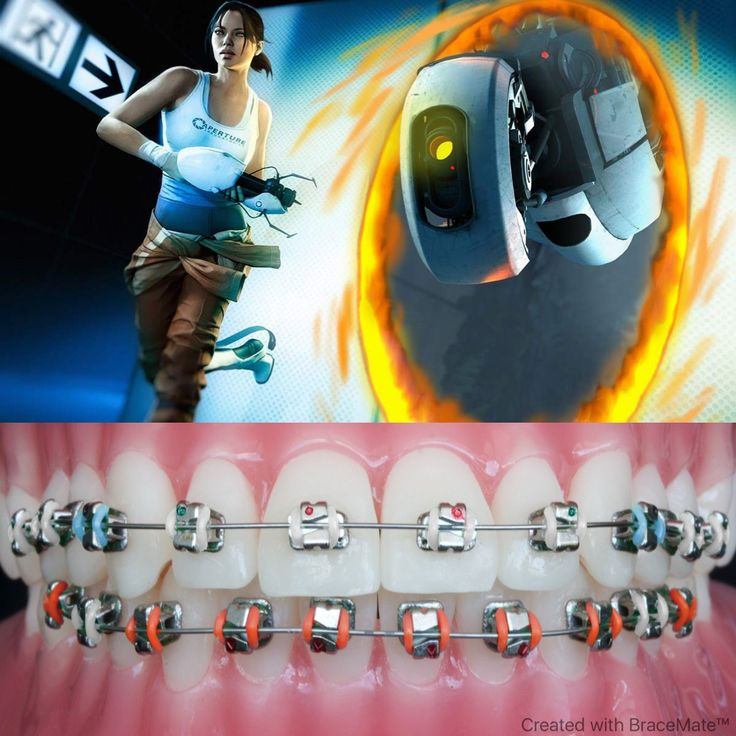 #Portal #Portal2 #valve #windows #osx #linus #playstation3 #xbox360 #steam #glados #gabenewell #gaming #games #pcgaming #pcgamer #chell #orthodontist #orthodontics #dental #dentalschool #dentistry #teeth #colors #color