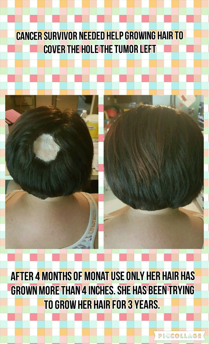 Hair growth results with Monat Monat hair