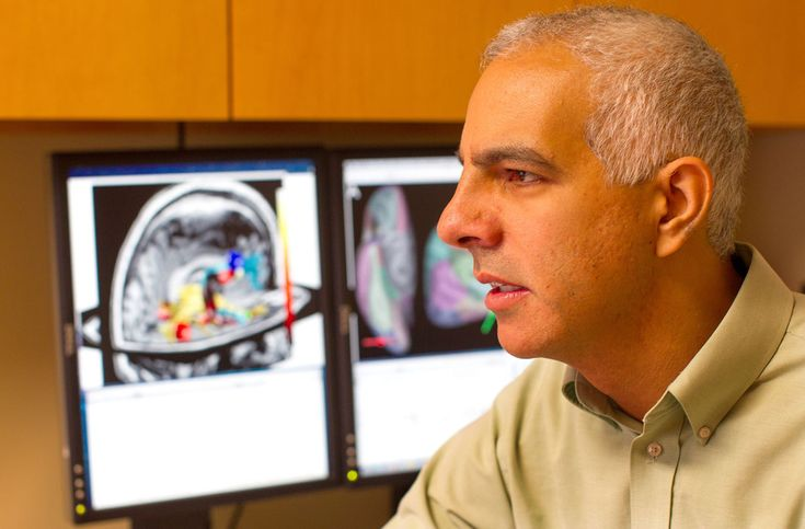 Radiology researchers have discovered that the brains of patients with chronic fatigue syndrome have diminished white matter and white matter abnormalities in the right hemisphere.