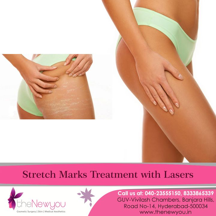 Say goodbye to annoying and ugly #stretchmarks permanently with the Laser Stretch Marks #Treatment from #theNewyou.