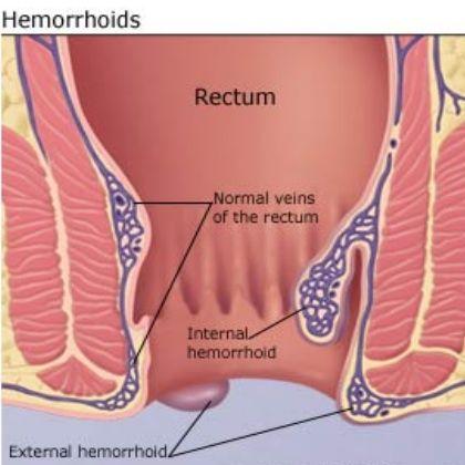 how to fix external hemorrhoids