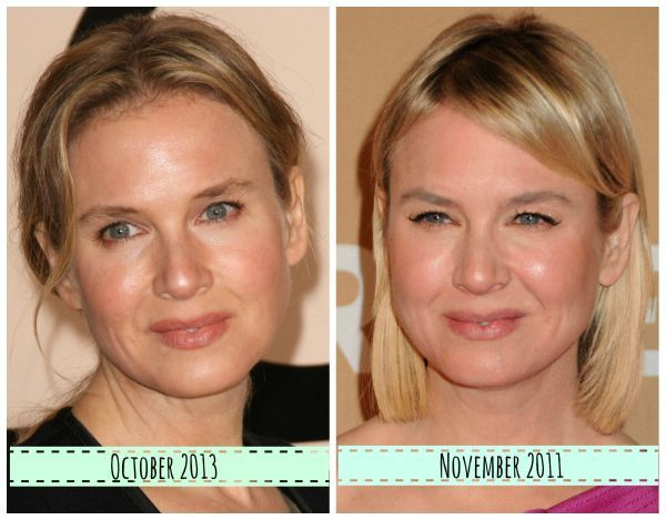 Renee Zellweger now and then - What did she do to her face ...
