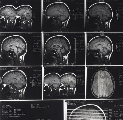 Facts About Traumatic Brain Injury