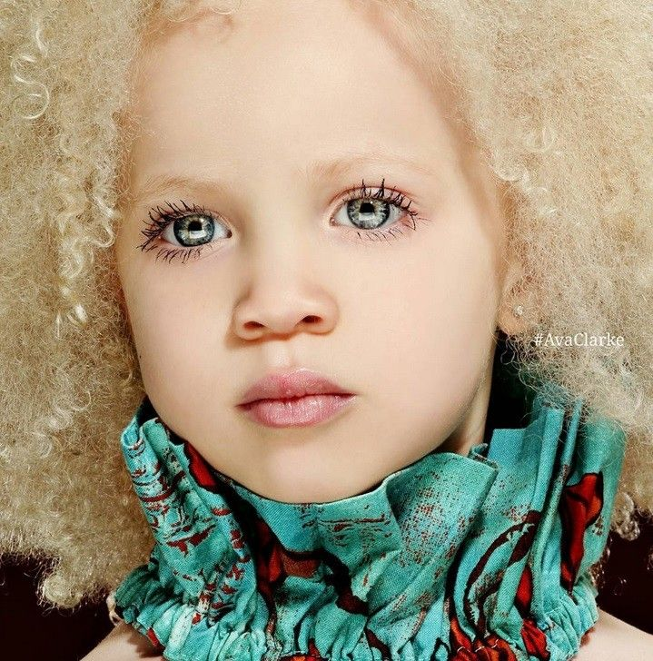 Ава Кларк - афроамериканката албинос. Какво прави едно дете по-различно от останалите? Още в мига, в който се ражда, става ясно, че Ава Кларк е едно необикновено момиче – очите й са синьо-зелени, кожата й млечно бяла, а косата – руса. Дотук няма нищо странно, ако биологичните й родители не бяха тъмнокожи афроамериканци, а тя не беше албинос. Виж тук…
